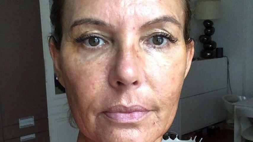 Falten-Kampf: Natascha Ochsenknecht bei blutiger Behandlung