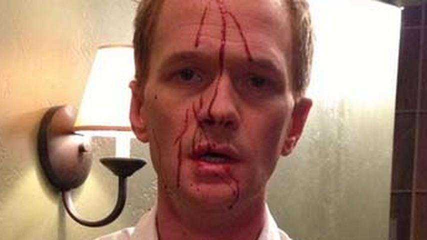 Neil Patrick Harris blutüberströmt am HIMYM-Set