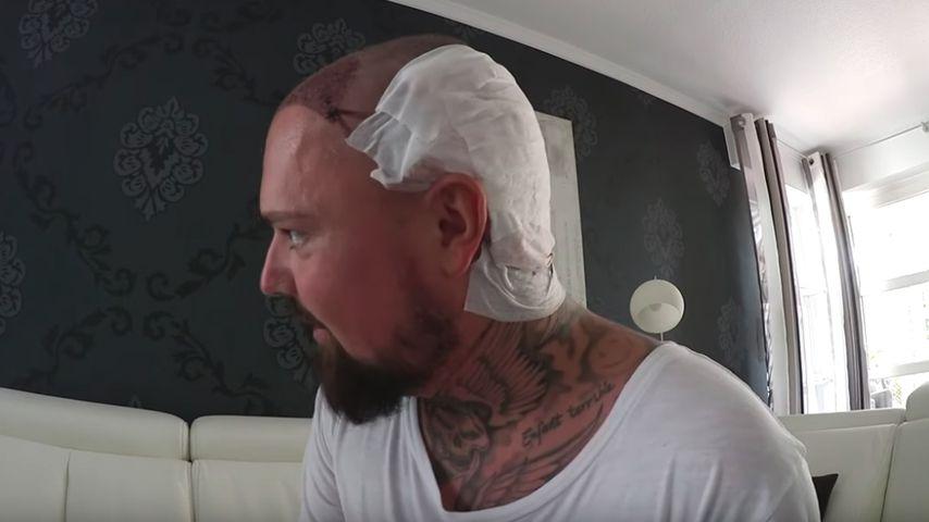 Niklas Schröder 24 Stunden nach seiner Haartransplantation