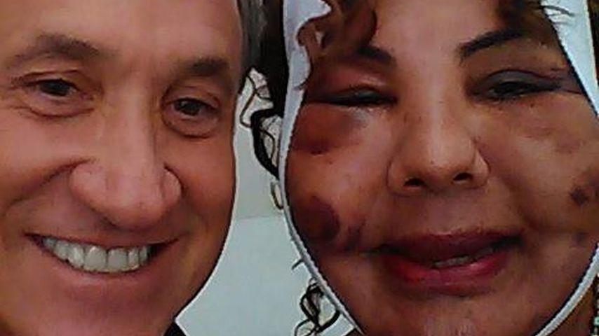 """Erlösung für """"Zementfrau"""": Sie bekommt ein neues Gesicht"""
