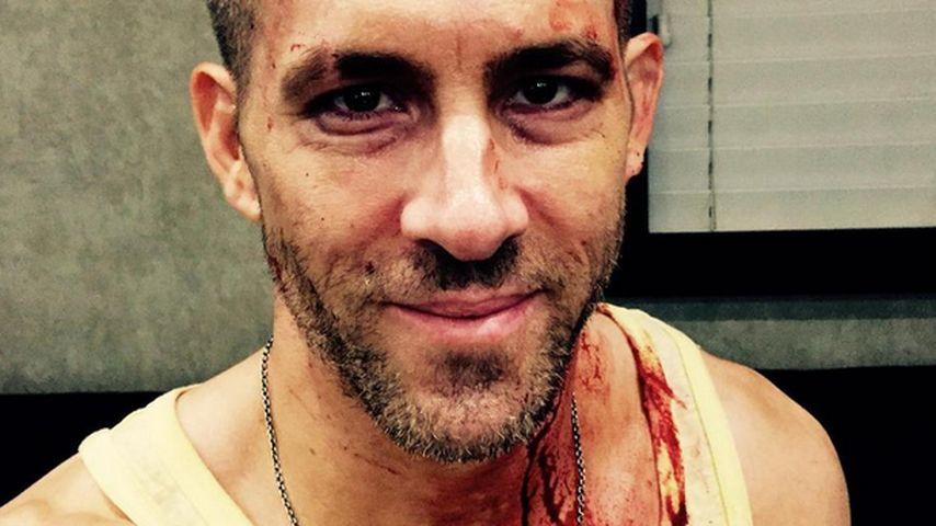 Voll mit Blut: Was ist nur mit Ryan Reynolds passiert?