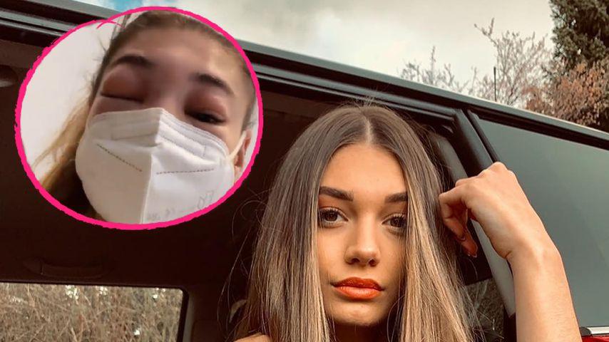 Ex-GNTM-Sarahs Gesicht bis zur Unkenntlichkeit angeschwollen