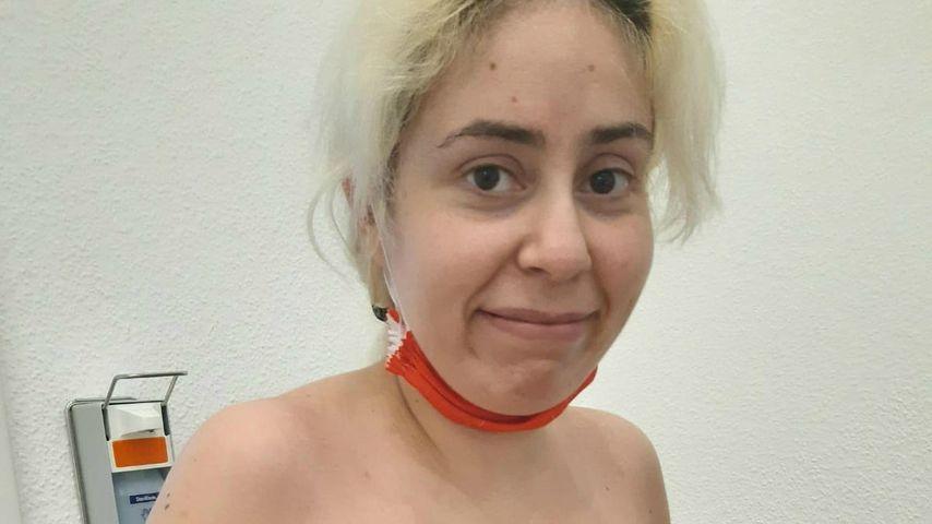 Selma nach ihrer Brust-OP im Oktober 2020