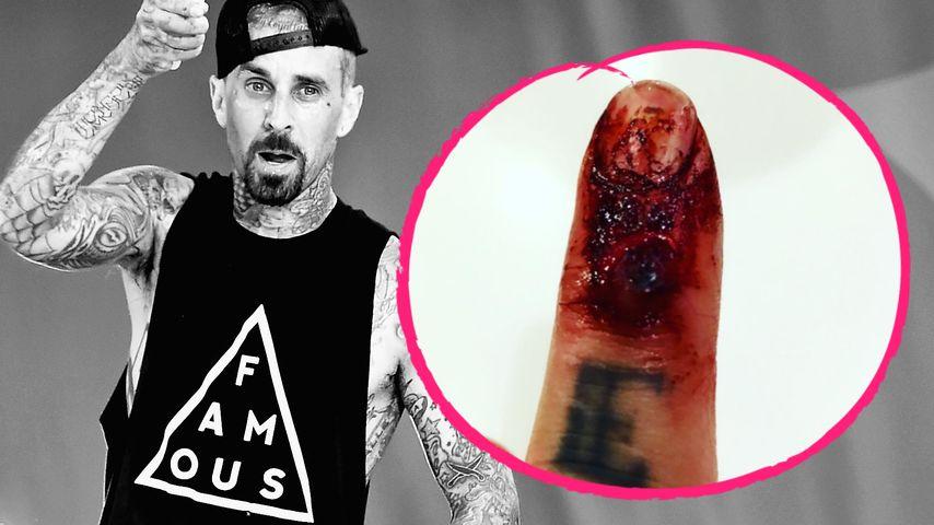 Autsch! Punkrocker Travis Barker schockt mit Ekel-Verletzung