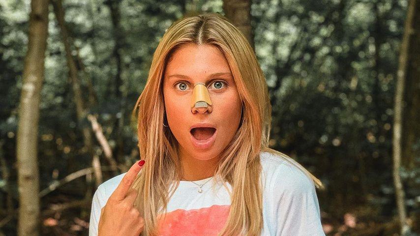 Beauty-OP: Raúl Richters Freundin Vanessa hat eine neue Nase