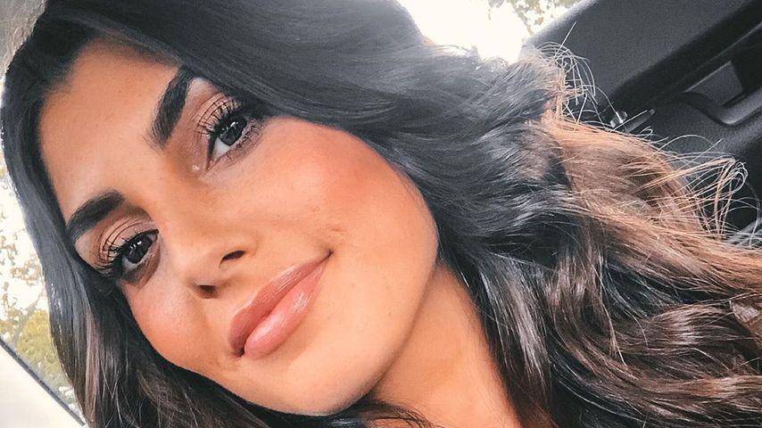 Aus Angst vor Nadeln: Auf diese Beauty-OP verzichtet Yeliz
