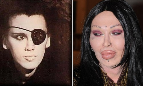 pete burns abschreckendes beispiel f r op wahn. Black Bedroom Furniture Sets. Home Design Ideas